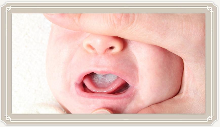 Белый язык у новорожденного при грудном вскармливании