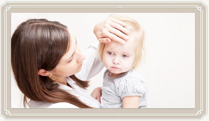 Как начинается ветрянка у детей: первые признаки