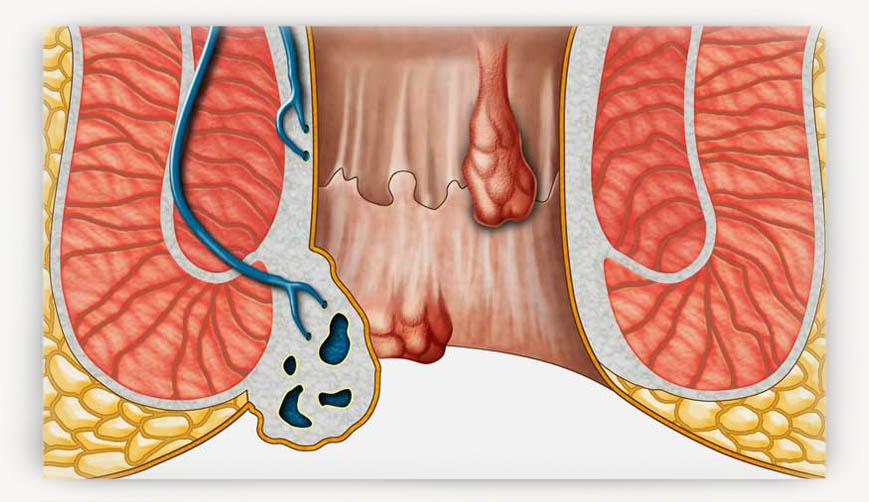 Признаки геморроя у женщин 12 причин возникновения и лечение