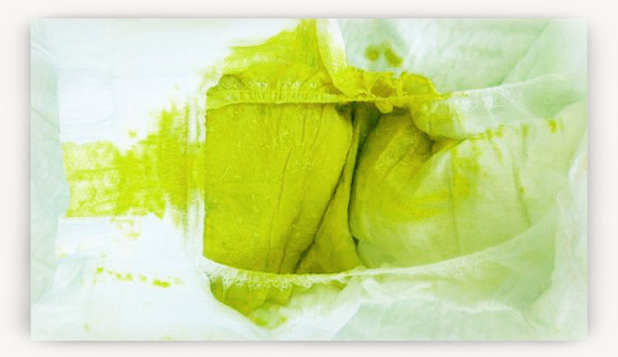 Что значит зеленый кал у ребенка