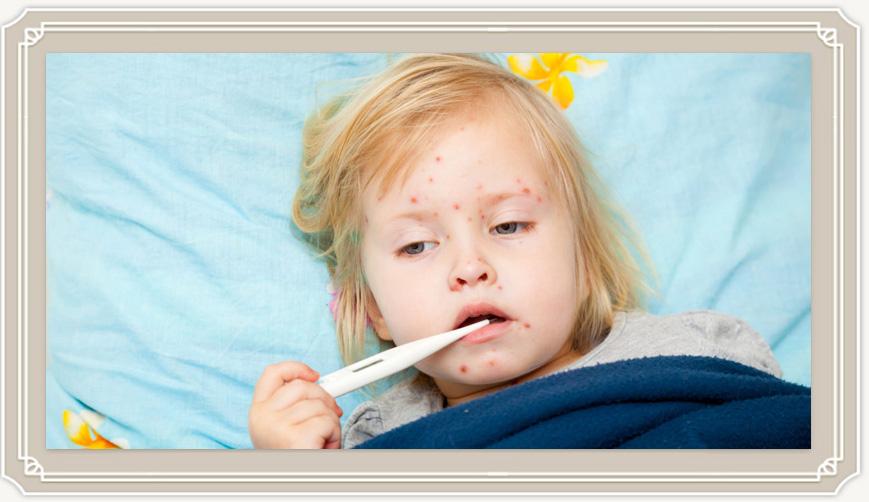 Как распознать все симптомы ветрянки у детей и быстро вылечить