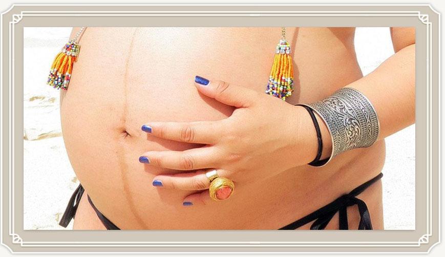 О чем может рассказать полоска на животе при беременности?